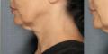 Exces de piele